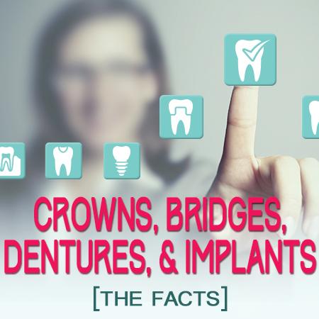 Dental Implants In Granbury